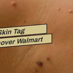 Best Skin Tag Remover Walmart (WARNING: Is It WORTH It?!)