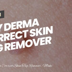 Buy Derma Correct Skin Tag Remover (UPDATE: What They Don't Tell You!)
