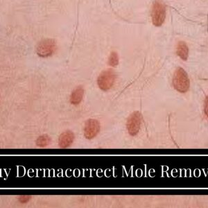 Buy Dermacorrect Mole Remover (WARNING: What You Should Know!)