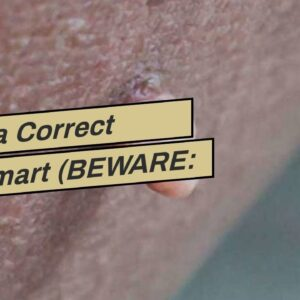 Derma Correct Walmart (BEWARE: Is It WORTH It?!)