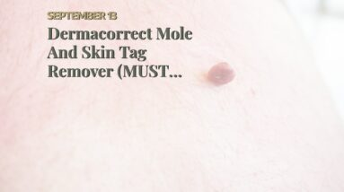 Dermacorrect Mole And Skin Tag Remover (MUST SEE: Truth About Skin Tags!)