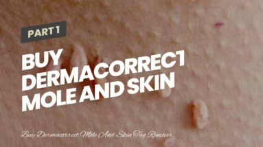 Buy Dermacorrect Mole And Skin Tag Remover (WARNING: What They Don't Tell You!)