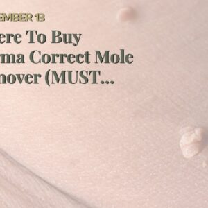 Where To Buy Derma Correct Mole Remover (MUST SEE: What They Don't Tell You!)