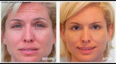 Eye Wrinkle Cream Reviews (How To Reduce Eye Wrinkles And Fine Lines)