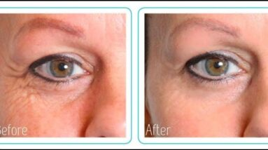 How To Get Rid Of Bags Underneath Your Eyes (MUST SEE!)
