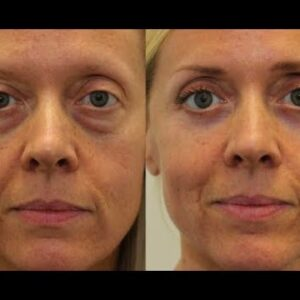 How To Get Rid Of Under Eye Bags FAST At Home