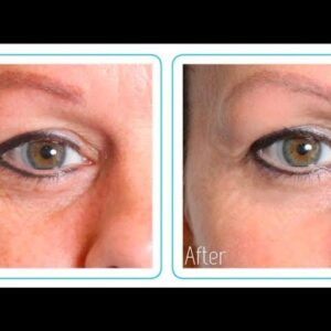 Hyaluronic Acid Before And After (MY RESULTS!)