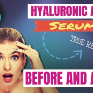 Hyaluronic Acid Serum Before And After (WATCH BEFORE BUYING!)