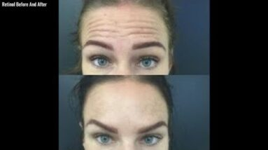 Retinol Before And After (For Wrinkles!)