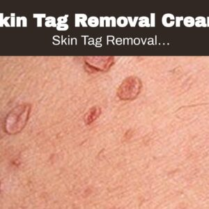 Skin Tag Removal Cream Walgreens (WARNING: Does It Work?!)