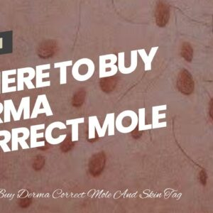 Where To Buy Derma Correct Mole And Skin Tag Remover (BEWARE: What You Should Know!)