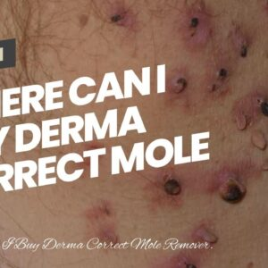 Where Can I Buy Derma Correct Mole Remover (UPDATE: Breakthrough!)