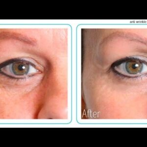 Anti Wrinkle Cream For Eyes (Eye Creams That Really Work!) Anti-Aging Eye Area