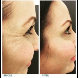 Hyaluronic Acid Serum Before Or After Retinol (What They Don't Tell You: Wrinkle Creams Exposed...