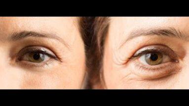 Hyaluronic Acid Serum Benefits (WARNING: Wrinkle Creams Exposed!)