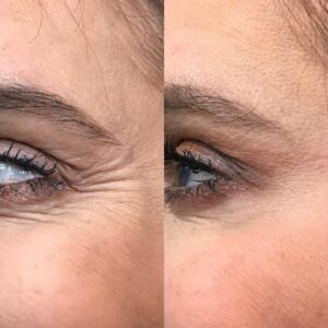Wrinkle Cream For Eyes That Works (LEGIT or SCAM?: My Shocking Results!)